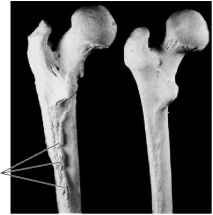 Thickened Bone