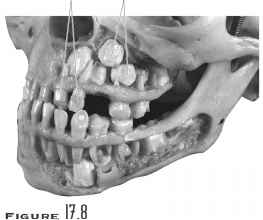 Primary And Permanent Teeth Skull