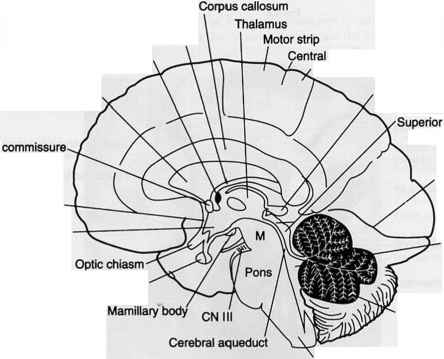 Cross Sectional Anatomy of the Brain - Cerebral Artery - GUWS Medical