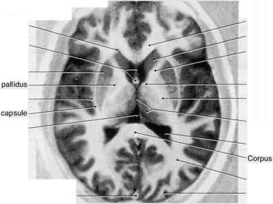 Axial Image Through The Thalamus And Internal Capsule ...