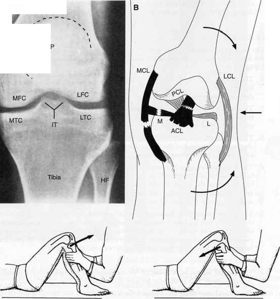 Cruciate Ligament Attachment Femur