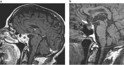 Pituitary Gland Mri Abnormal