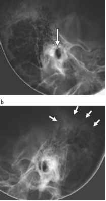 Do you know about the schller projection clinical radiology