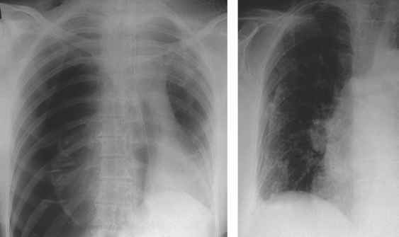 Depressed Left Hemidiaphragm