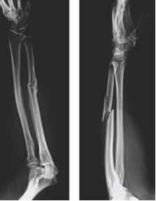Isolated Distal Radial Fracture