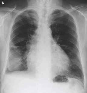 Right Sided Pleural Effusion