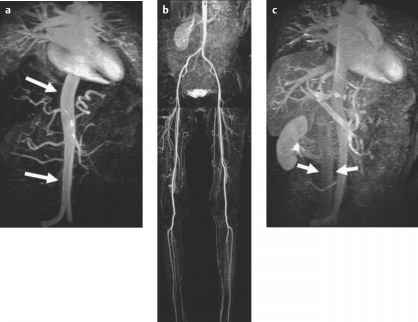 Angiography Lower Extremities