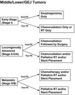 Esophageal Cancer Stage Based Treatment