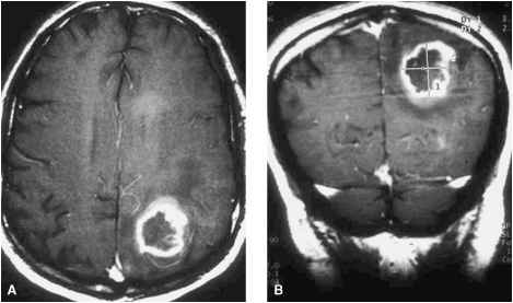 Brain Mets From Teratoma