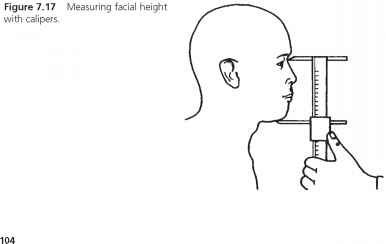 Lower Facial Height