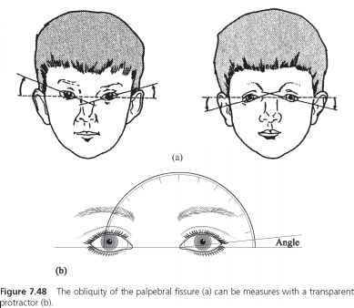 Palpebral Fissure
