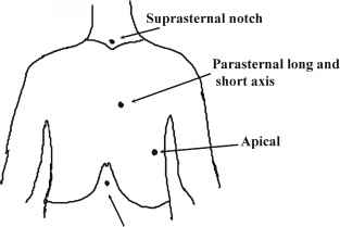 Suprasternal Notch Ultrasound