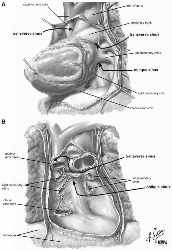 Internal Anatomy Of The Heart - Heart Failure - GUWS Medical