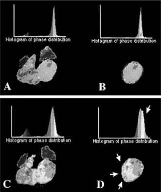 Cardiac MRI and radionuclide ventriculography for ...