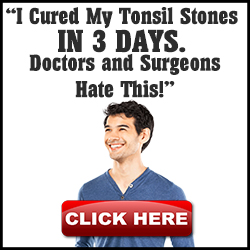 Fast Tonsil Stones Cure Review