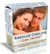 Science Based Angular Cheilitis Treatment