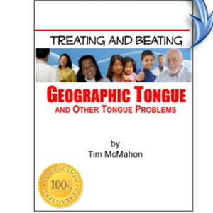 Treating Geographic Tongue