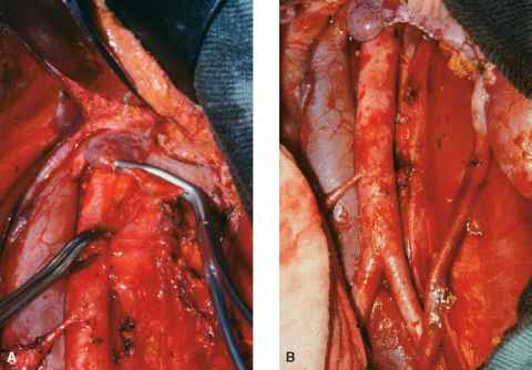Aortocaval Lymph Node