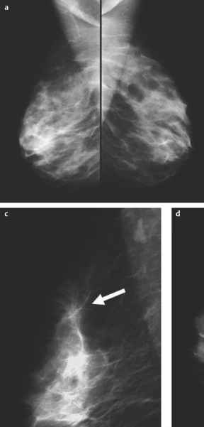 Pictures Normal Breast Mammogram