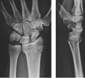 Bayonet Distal Ulna Fracture