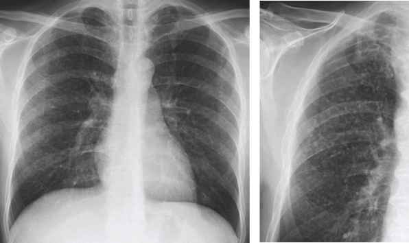 Cxr With Congestion