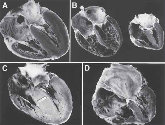 Normal Heart Specimen