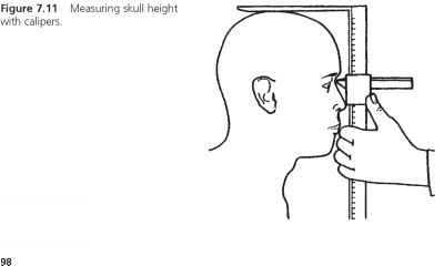 Head Circumference And Height