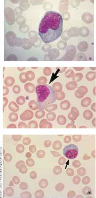 Reactive Lymphocytes Pics