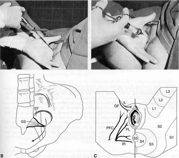 Rectal Nerve Block