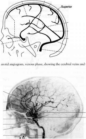 Superior Ophthalmic Vein Angiography