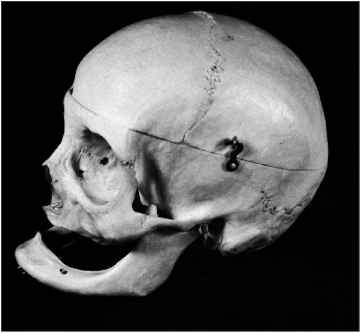 Skull Lateral View Sphenoid