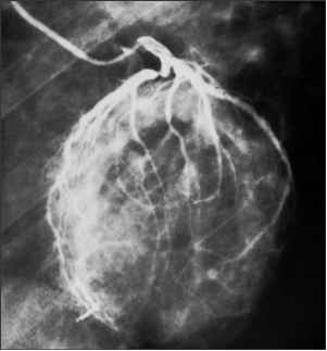 Angiogram Human Heart