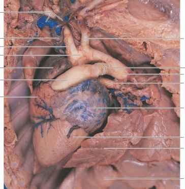 Left Subclavian Artery Anatomy