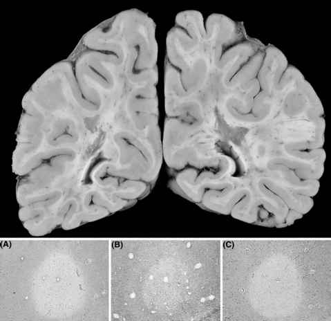 Multiple Sclerosis Lesions