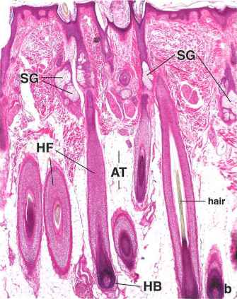Hair Follicle Outer Root Sheath Tem