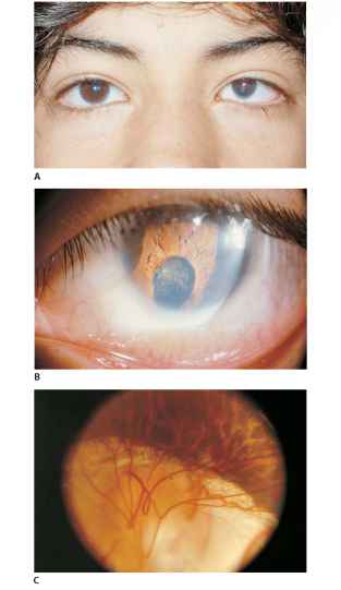 Colobomatous Microphthalmia